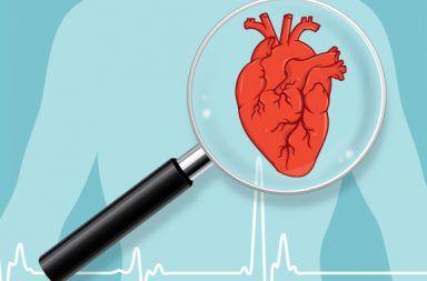 ما هو الإحصار القلبي: الأسباب والأعراض والتشخيص والعلاج إحصار الحزمة الأذينية البطينية AV bundle ضربات القلب خفقان القلب النبضات الكهربائية