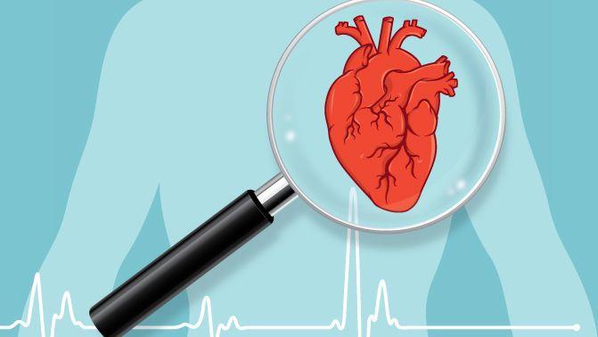 ما هو الإحصار القلبي: الأسباب والأعراض والتشخيص والعلاج