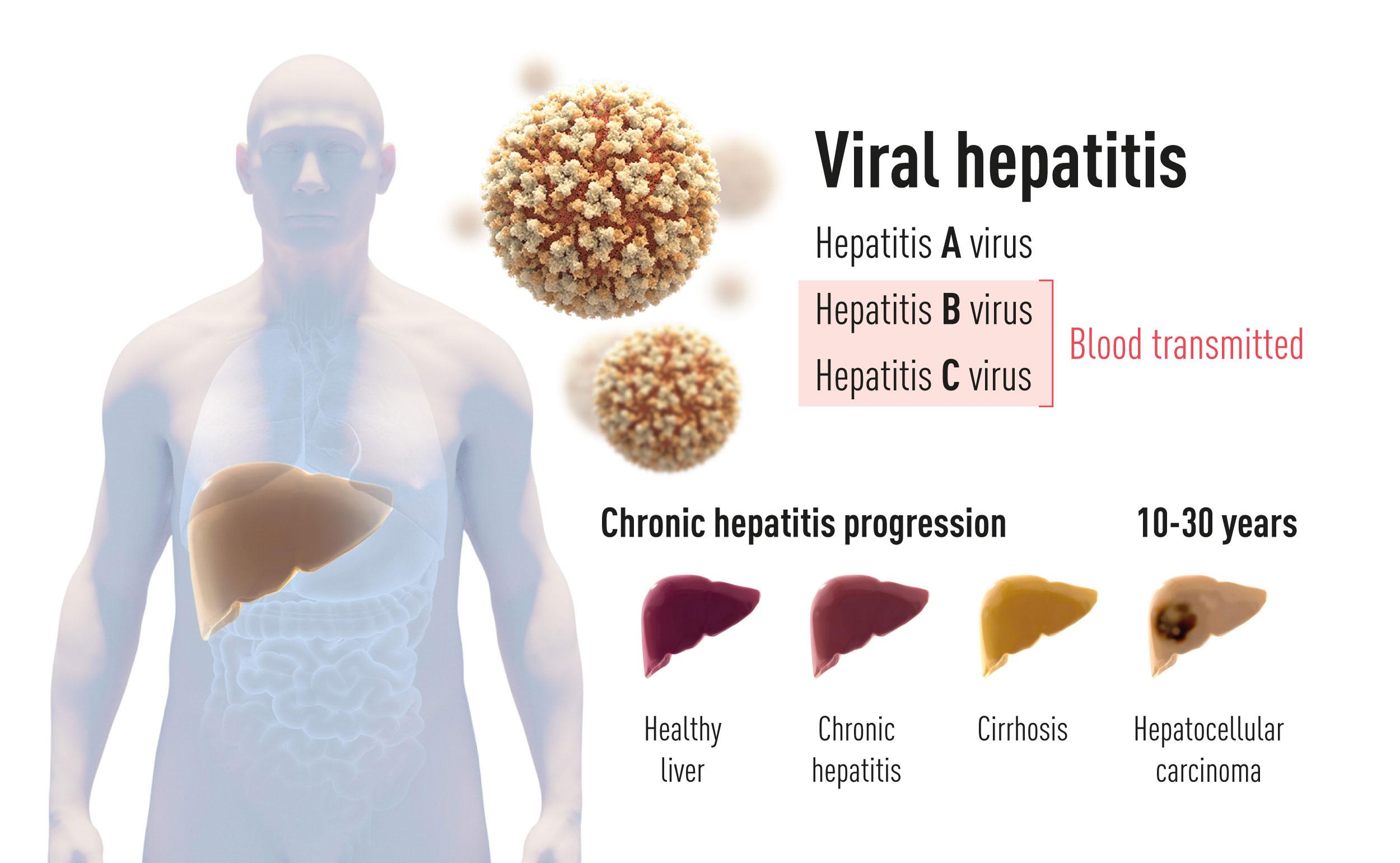 يوجد نمطان لمرض التهاب الكبد. أحدهما حاد يسببه فيروس التهاب الكبد A وينتقل عن طريق الطعام والماء الملوث. النمط الآخر يسببه أحد الفيروسين B أوC (أُعطيت جائزة نوبل هذا العام لاكتشاف الفيروس C). هذا النمط من التهاب الكبد المنتقل من طريق الدم غالبًا ما يتطور مسببًّا تشمع الكبد وسرطان الخلايا الكبدية