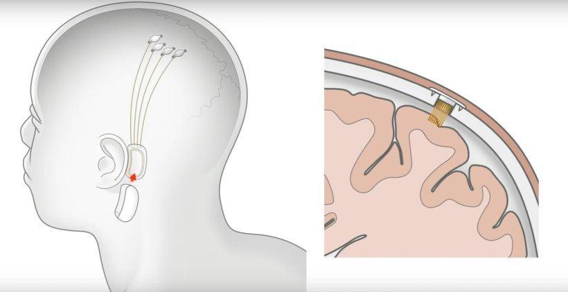 كل ما يجب أن تعرفه عن شريحة الذكاء الاصطناعي المقدّمة من نورولينك - الدليل الشامل للطفرة التكنولوجية الجديدة في عالم المخ والأعصاب