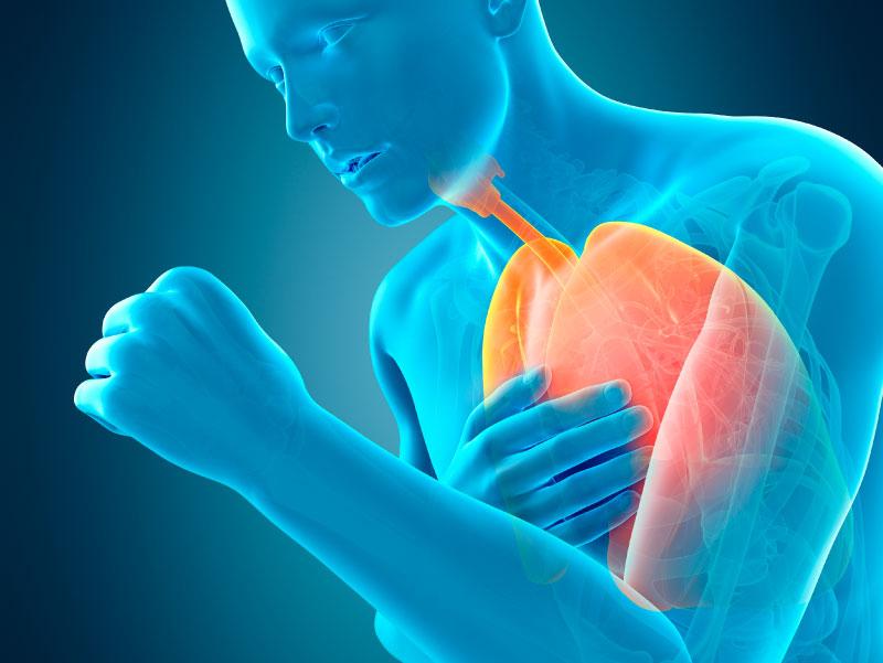 4 أعراض لمرض الانسداد الرئوي المزمن عليك الحذر منها - أعراض مرض الانسداد الرئوي المزمن - التدخين السلبي - الهواء الملوث - ضيق التنفس