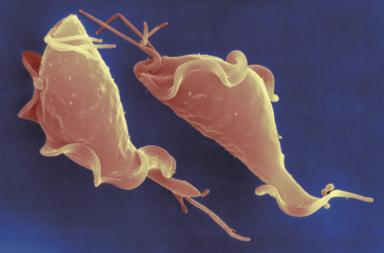 داء المشعرات Trichomoniasis الأسباب والأعراض والتشخيص والعلاج - عدوى شائعة منقولة بالجنس - بقع دم مهبلية أو نزف مهبلي - حرقة تناسلية