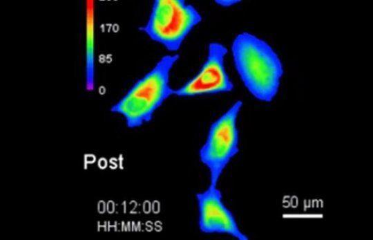 اخر صيحات العلم التحكم بالخلايا عن طريق الضوء