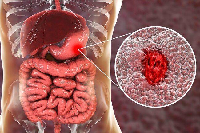 القرحة الهضمية Stomach (Peptic) Ulcers