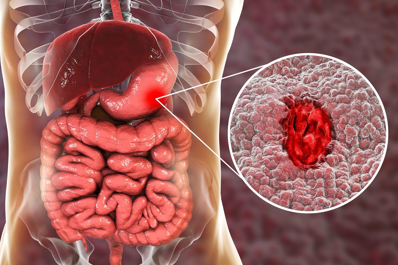 ترقيع قرحة المعدة داخل جسم الإنسان بواسطة الطابعة ثلاثية الأبعاد