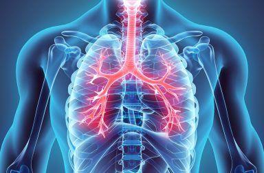 السيليكوز أو السحار السيليسي (داء الرئة الصواني) مرض طويل الأمد يصيب الرئتين، وينتج عن استنشاق كميات كبيرة من غبار السيليكا البلوري على مدى سنوات عديدة
