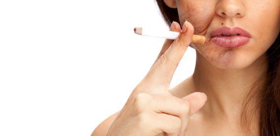 اطرد العادة بعيدًا: 10 نصائح علمية للإقلاع عن التدخين