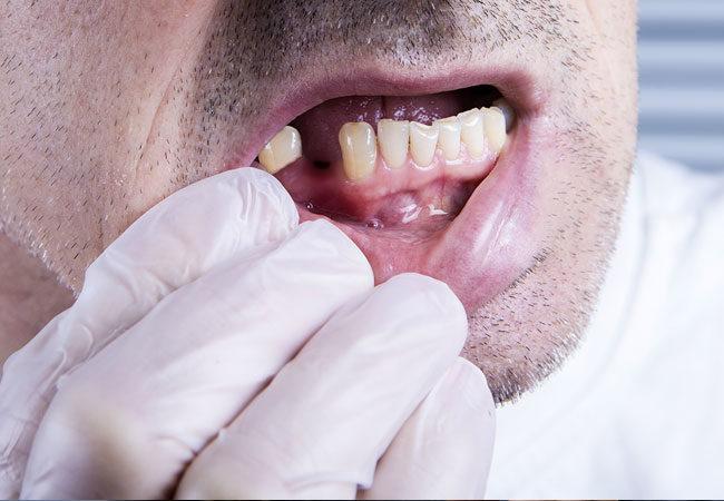 ما الصلة بين فيروس كورونا و صحة الفم ؟ - اكتشاف التأثيرات المحتملة لفيروس كورونا المستجد على الفم واللثة، وصحة تجويف الفم عمومًا