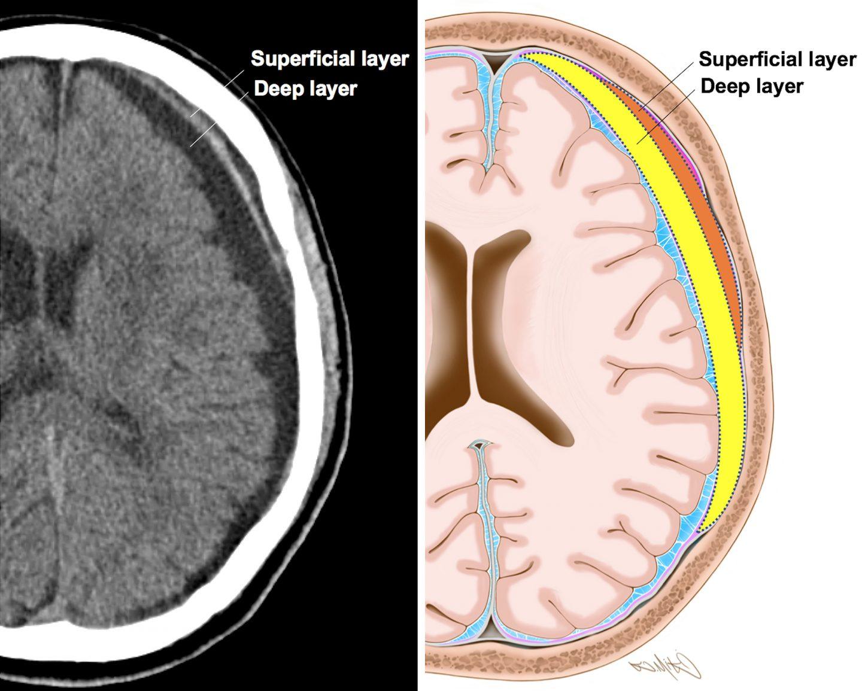 النزف تحت الجافية: الأسباب والأعراض والتشخيص والعلاج