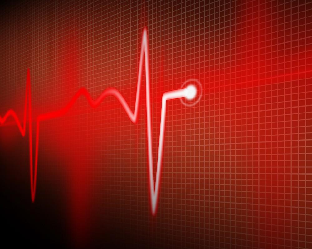 قد تكون مميعات الدم خيارًا أفضل من الوارفارين لمرضى الرجفان الأذيني