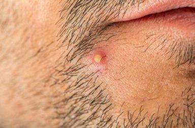 كيفية التمييز بين الجمرة وآفات الجلد الأخرى - ما عوامل خطر الإصابة بالجمرة؟ - ما أسباب تشكل الجمرة؟ - ما هي الجمرة، وكيف أعالجها؟ - علاج الدمامل