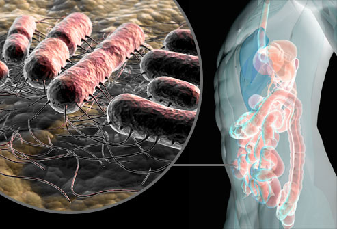 عدوى المثانة (خمج المثانة) هي عدوى جرثومية تصيب السبيل البولي - عدوى السبيل البولي - جرثومة الإشريكية القولونية - دخول الجراثيم إلى الإحليل