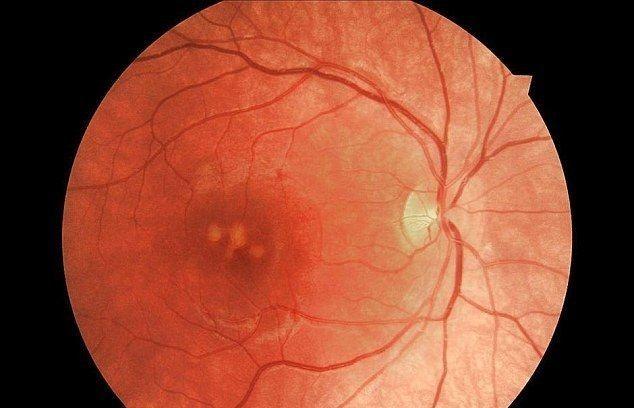 كيف يمكن للتحديق في شعاع مؤشر الليزر أن يؤذي عينيك؟