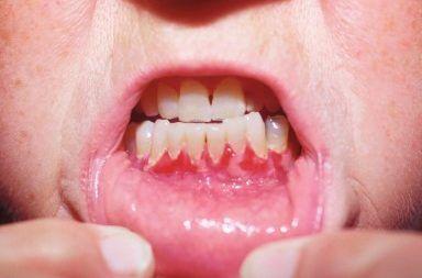 الفقاع الشائع Pemphigus vulgaris : الأسباب والأعراض والتشخيص والعلاج أسباب ظهور البثور المؤلمة على الجلد التقرحات الجلدية