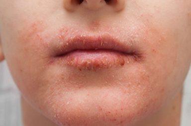 تقشر الوجه: الأسباب والعلاج - التعرض للهواء البارد والاستحمام بالماء الساخن - الرطوبة المتغيرة - احمرار وتهيج أو التهاب نتيجة التعرض للشمس - جفاف الجلد
