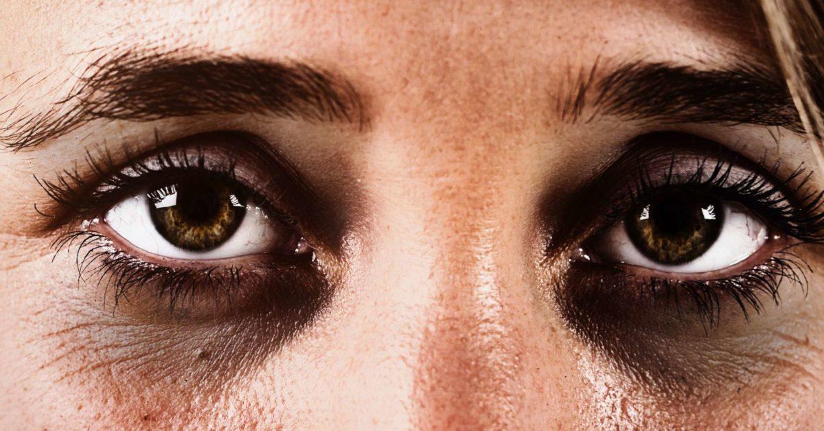 الهالات السوداء تحت العينين الأسباب والعلاج أنا أصدق العلم