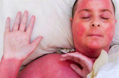 متلازمة الرقبة الحمراء - طفح أحمر يتطور على الوجه والرقبة والجذع عند متعاطي دواء الفانكومايسين - المكورات العنقودية المقاومة للميثيسيلين