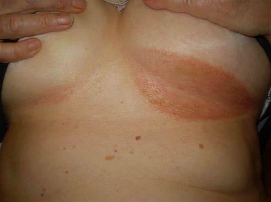 الطفح الجلدي تحت الثدي: الأسباب والعلاج - الأخماج والحساسية واضطرابات المناعة الذاتية والسرطان - الصدفية العكسية - انسداد قنوات الغدد العرقية