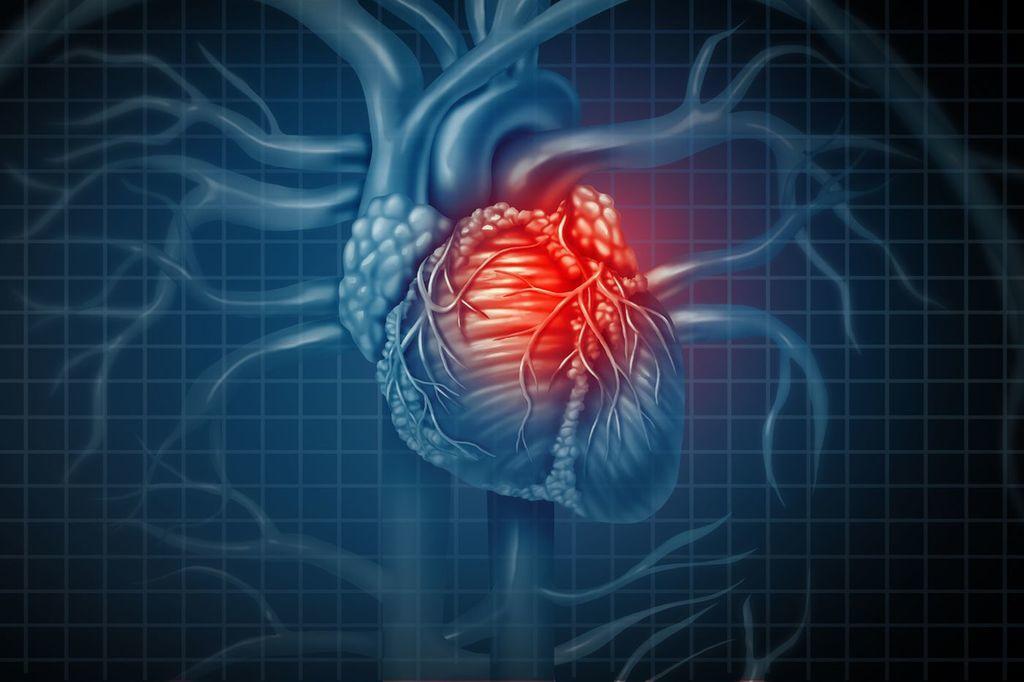 اعتلال عضلة القلب الكحولي المنشأ: الأسباب والأعراض والتشخيص والعلاج