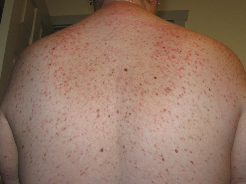 الشرى الصباغي Urticaria pigmentosa: الأسباب والأعراض والتشخيص والعلاج