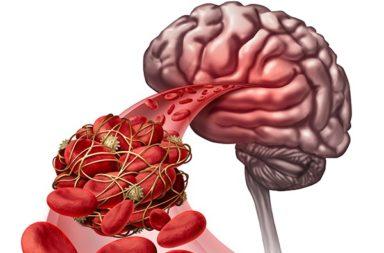 كل ما عليك معرفته عن خثار الجيوب الوريدية الدماغي - نوع من الجلطات الدموية النادرة التي تتشكل في الجيوب الوريدية في الدماغ