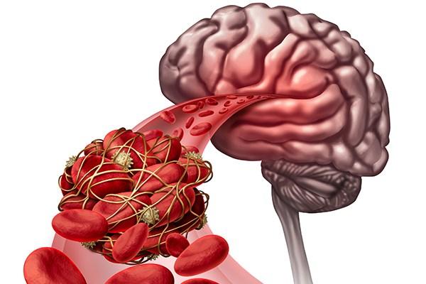 كل ما عليك معرفته عن خثار الجيوب الوريدية الدماغي