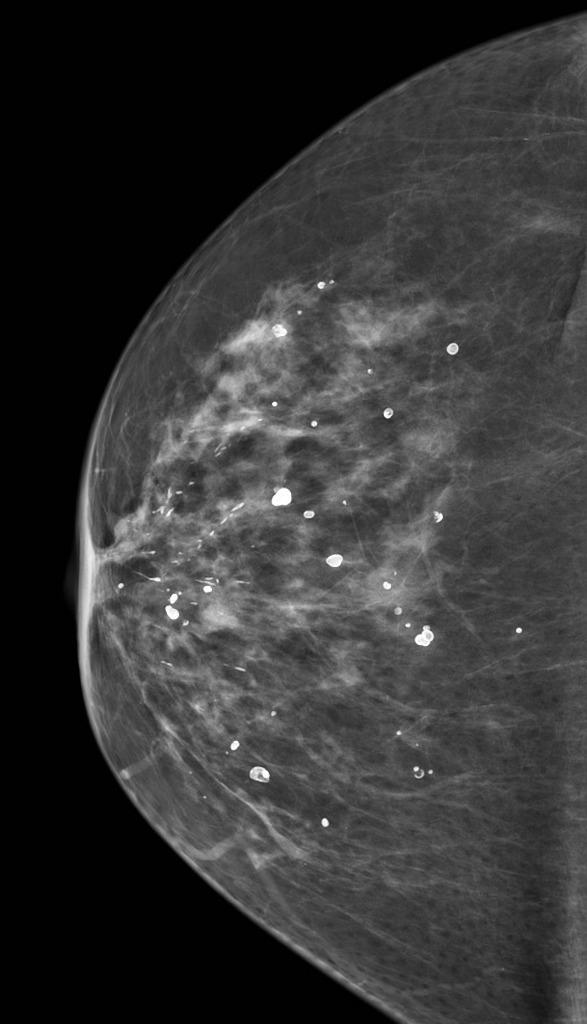 تكلسات الثدي: الأسباب والعلاج - ترسبات صغيرة من الكالسيوم في نسيج الثدي - تصوير الثدي الشعاعي (الماموجرام) - سرطان الثدي - رواسب غير سرطانية