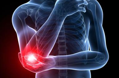 ألم المرفق: الأسباب والعلاج - الإصابات الرياضية والاستخدام الزائد للمفصل العديد من حالات الإصابة المرفقية - عضلات الذراع - أربطة المرفق