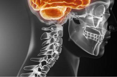 الورم الحبلي: الأسباب والأعراض والتشخيص والعلاج ما هي أعراض الورم الحبلي الورم الذي يصيب العمود الفقري سرطان الجها زالعصبي