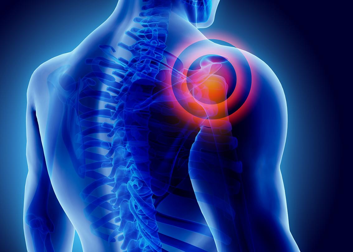ألم الكتف: الأسباب والعلاج - عظم العضد (عظم الذراع)، وعظم الترقوة، وعظم الكتف - أمراض العمود الفقري العنقي وأمراض الكبد - الغضاريف - الألم الكتفي