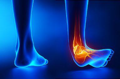 آلام الساق: الأسباب والعلاج والوقاية - يتراوح الألم أو الانزعاج في أي موضع بالساق من ألم خفيف إلى إحساس بوخز شديد - كسور الإجهاد