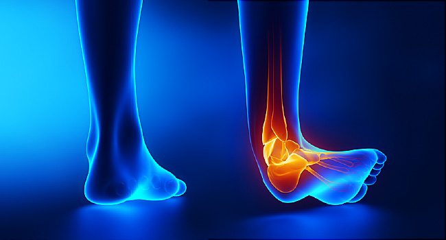 آلام الساق الأسباب والعلاج والوقاية أنا أصدق العلم