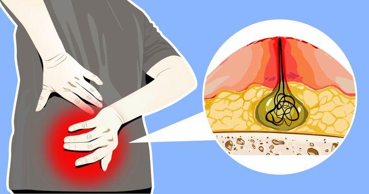 كيسة أو خراج مملوءة بسائل قيحي في منطقة الشق أعلى الأرداف - إنتان مؤلم في المنطقة أسفل الظهر فوق الأرداف - تشخيص وعلاج الناسور الشعري
