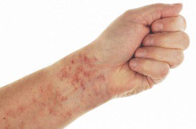 ظهور النمش: الأسباب والعلاج والوقاية - أرجوانية أو حمراء أو بنيّة اللون تظهر غالبًا على اليدين أو الذراعين - تمزق الأوعية الدموية الصغيرة
