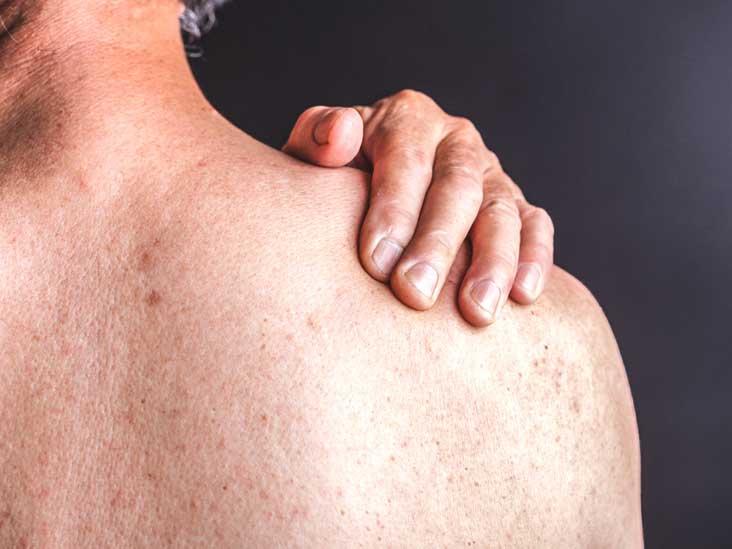الصدفية - مرض مناعي مزمن يسبب تراكم خلايا الجلد ما يؤدي لتدرجات على سطح الجلد - رقع حمراء سميكة - مهاجمة البكتيريا ومحاربة العدوى