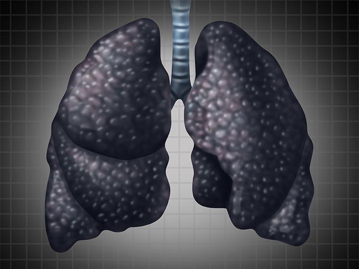 أحد أمراض الرئة التي تصيب عمال مناجم الفحم - ما هو سحار عمال الفحم؟ كيف يؤثر السحار في الجسم؟ وكيف يتم علاجه والسيطرة على أعراضه؟
