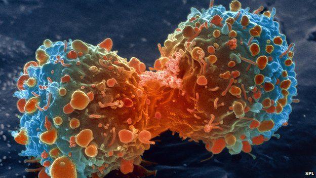 ماذا تعني الدرجات المختلفة للسرطان؟