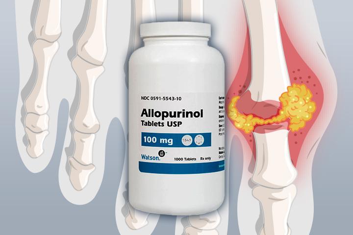 دواء ألوبيورينول: الاستخدامات والجرعات والتأثيرات الجانبية والتحذيرات - دواء لعلاج النقرس والحصى الكلوية - تقليل مستويات حمض البول