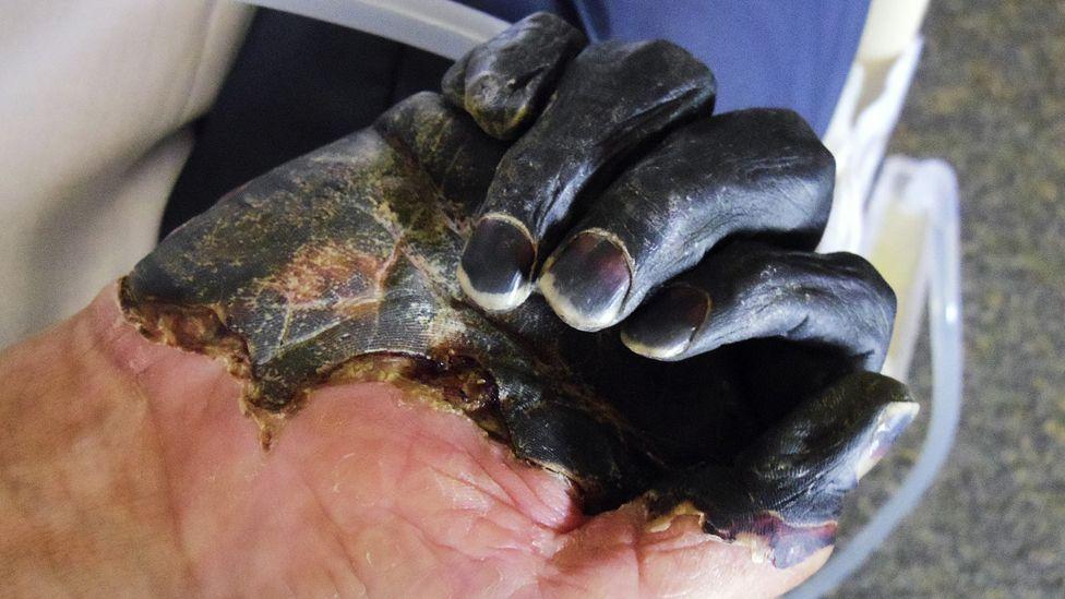 الطاعون الدبلي ما يزال موجودًا، لكن لا حاجة إلى القلق - أعلنت وزارة الصحة الصينية عن اكتشاف إصابة جديدة بالطاعون الدبلي - الموت الأسود