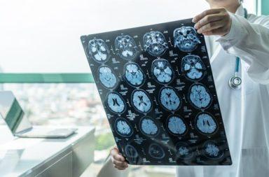 قد تكون العلامات المبكرة المنذرة بالخرف كامنة في دمائنا - التنبؤات الباكرة بحدوث الخرف وكيف تساعد المرضى على كيفية التعامل معه