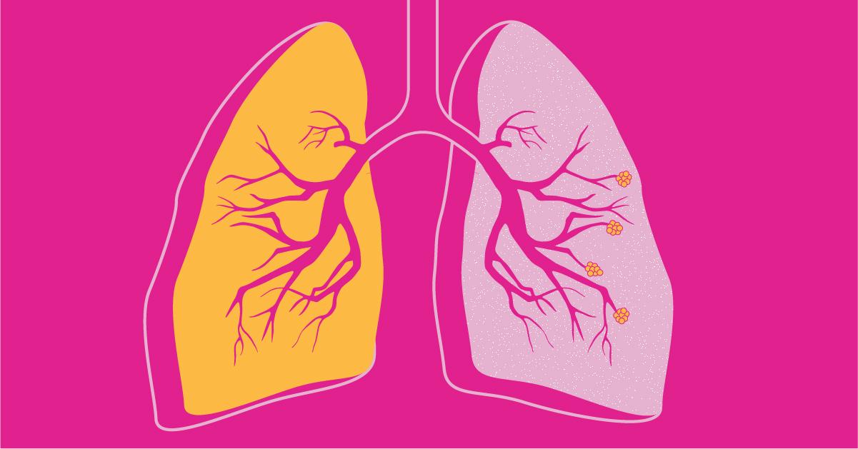 ما علاقة خسارة الوزن بداء الانسداد الرئوي المزمن - داء الانسداد الرئوي المزمن COPD مرض يسبب صعوبات في التنفس - التهاب القصبات المزمن