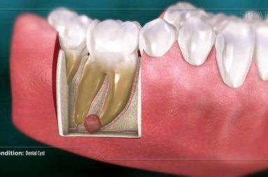 الأكياس السنية الأسباب والأعراض والتشخيص والعلاج الخراجات المسننة الخراجات الجذرية أمراض الفم ألم الأسنان الأنسجة الرخوة في الفم