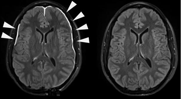 آفات الدماغ: الأسباب والعلاج - الأضرار التي بإمكانها إصابة أي جزء من الدماغ - اللويحات المترسّبة في أنسجة الدماغ - التصوير المقطعي المحوسب
