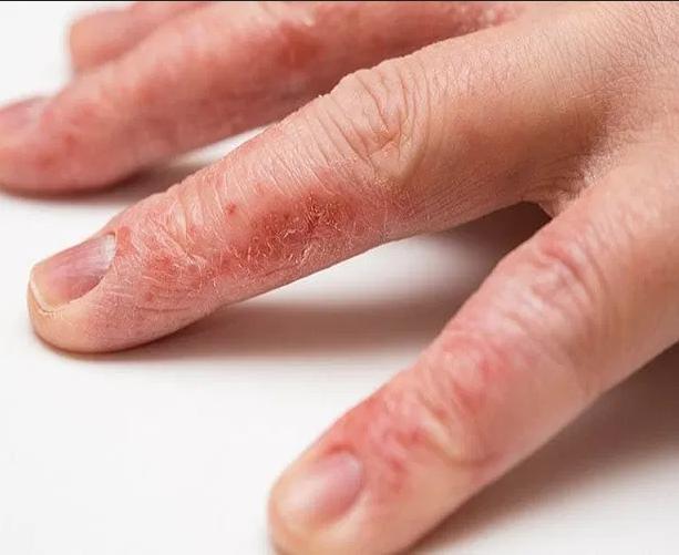 ما أسباب تقشر جلد اليدين وما علاجه أنا أصدق العلم