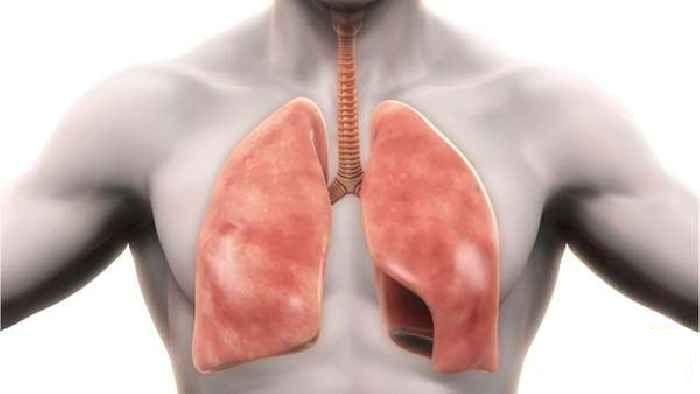 انخماص الرئة - ما هي أعراض الانخماص الرئوي وما طرق علاجه