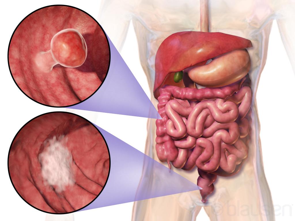 متى عليك البدء بإجراء اختبارات التصوير للكشف عن سرطان القولون والمستقيم؟ - معدلات انتشار سرطان القولون والمستقيم بين الأفراد