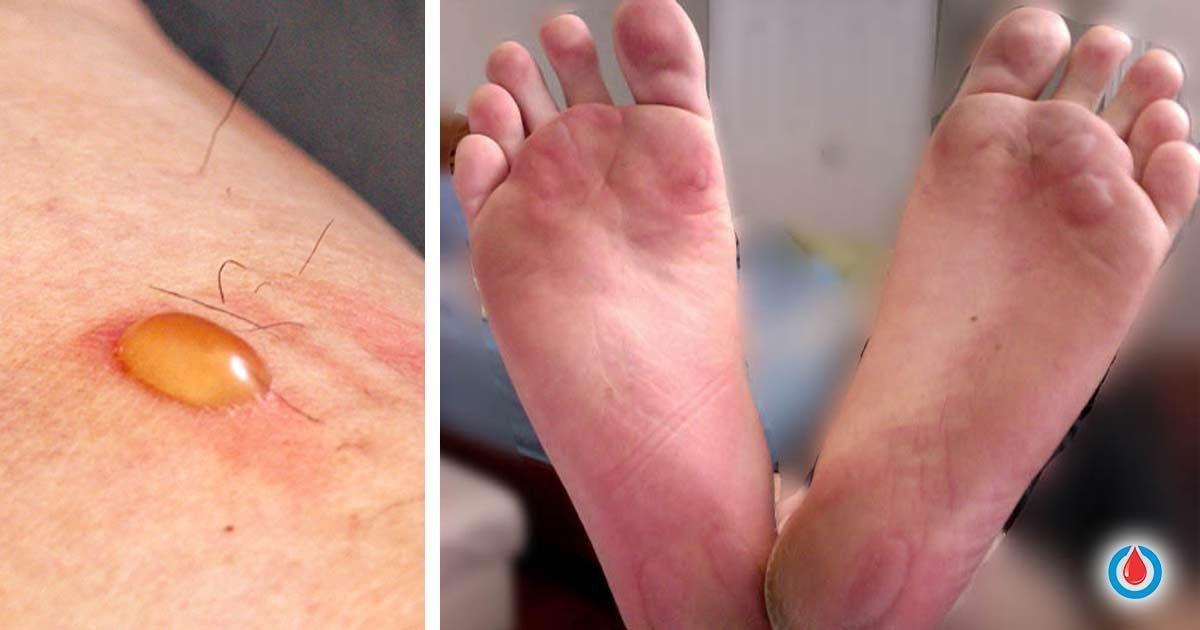 كل ما عليك أن تعرفه عن فقاعات السكري - الفقاعات السكرية - التفقع سكري المنشأ - ارتداء الأحذية غير المناسبة - العدوى الفطرية بالمبيضة البيضاء
