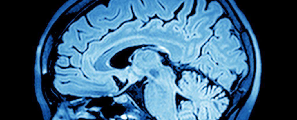 العلماء يجدون طريقة تحويل اشارات الدماغ إلى كلام