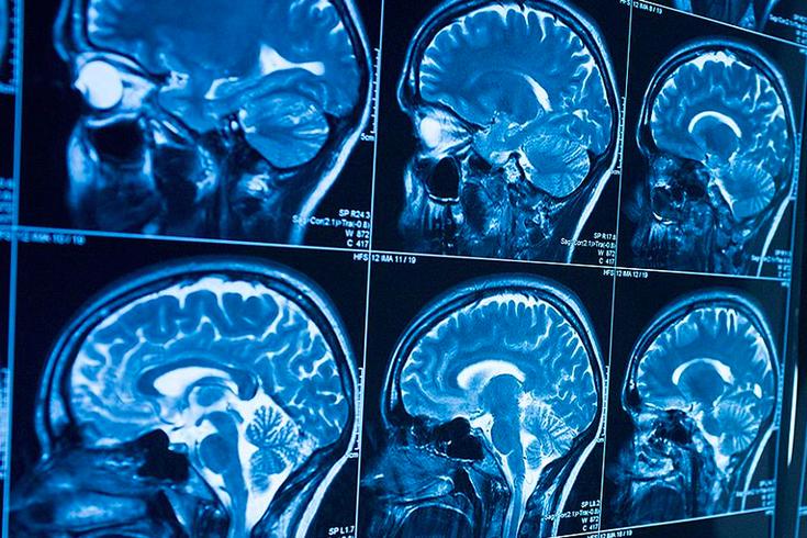اضطراب عصبي جديد يسبب تأخر النمو والصرع عند الأطفال - اضطراب عصبي تنكسي جديد يصيب الأطفال ويسبب تأخرًا في النمو مع نوبات صرع شديدة