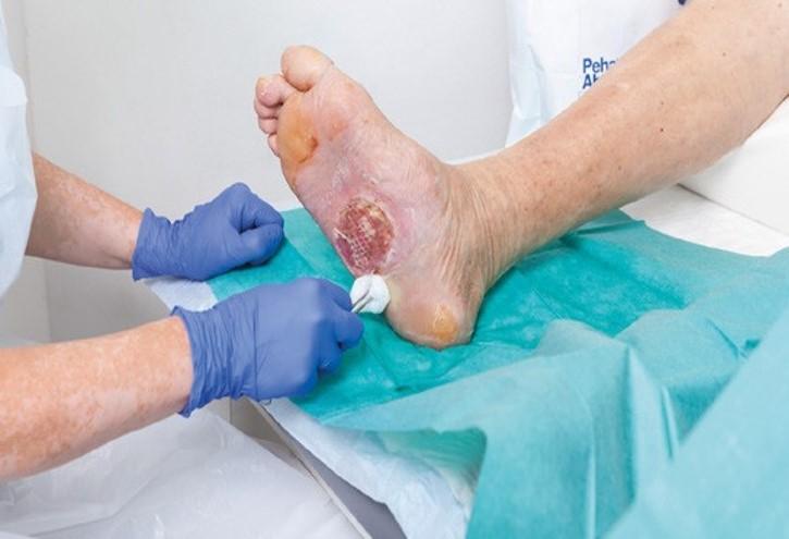 ما هو تنضير الجروح ومتى يكون ضروريًا؟ - أهمية إزالة الأنسجة الميتة من الجرح - إزالة النسج التالفة من الجروح لعلاجها بشكل أسرع